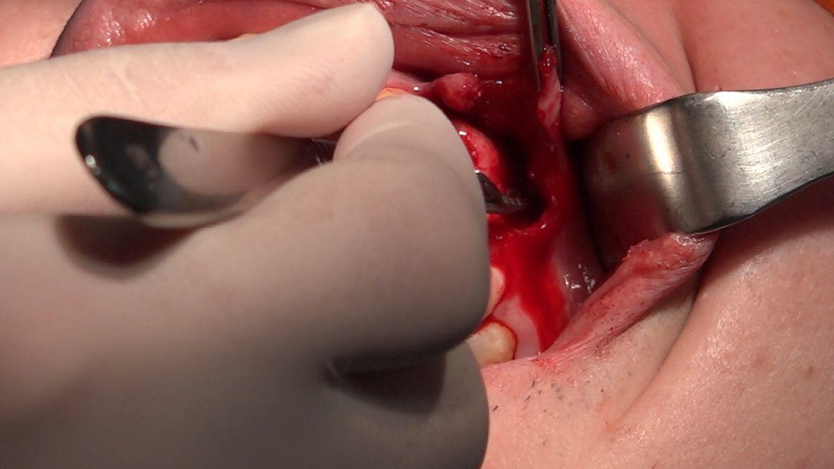 practiculum-implantologii-sviib-s7-d2-311