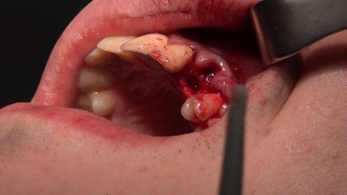 practiculum-implantologii-sviib-s7-d2-314