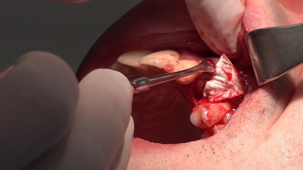 practiculum-implantologii-sviib-s7-d2-317