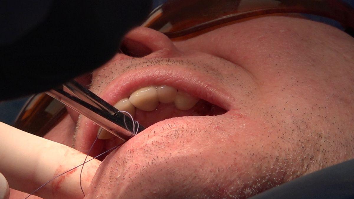practiculum-implantologii-sviib-s7-d1-223
