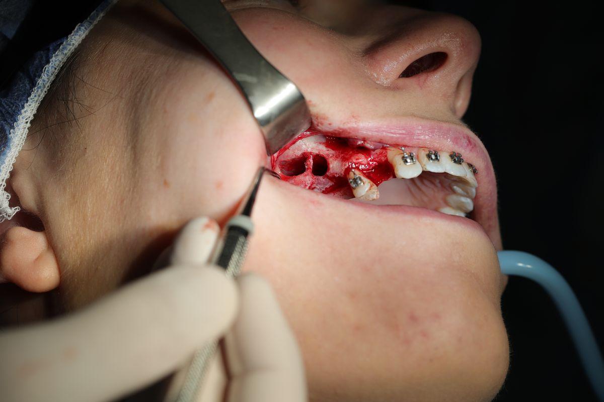practiculum-implantologii-sviia-s7-283