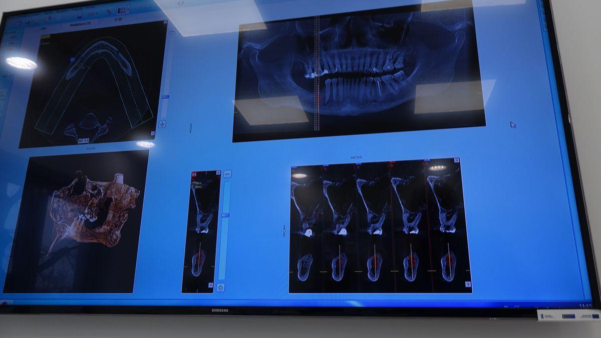 preludium-implantologii-siii-s5-079