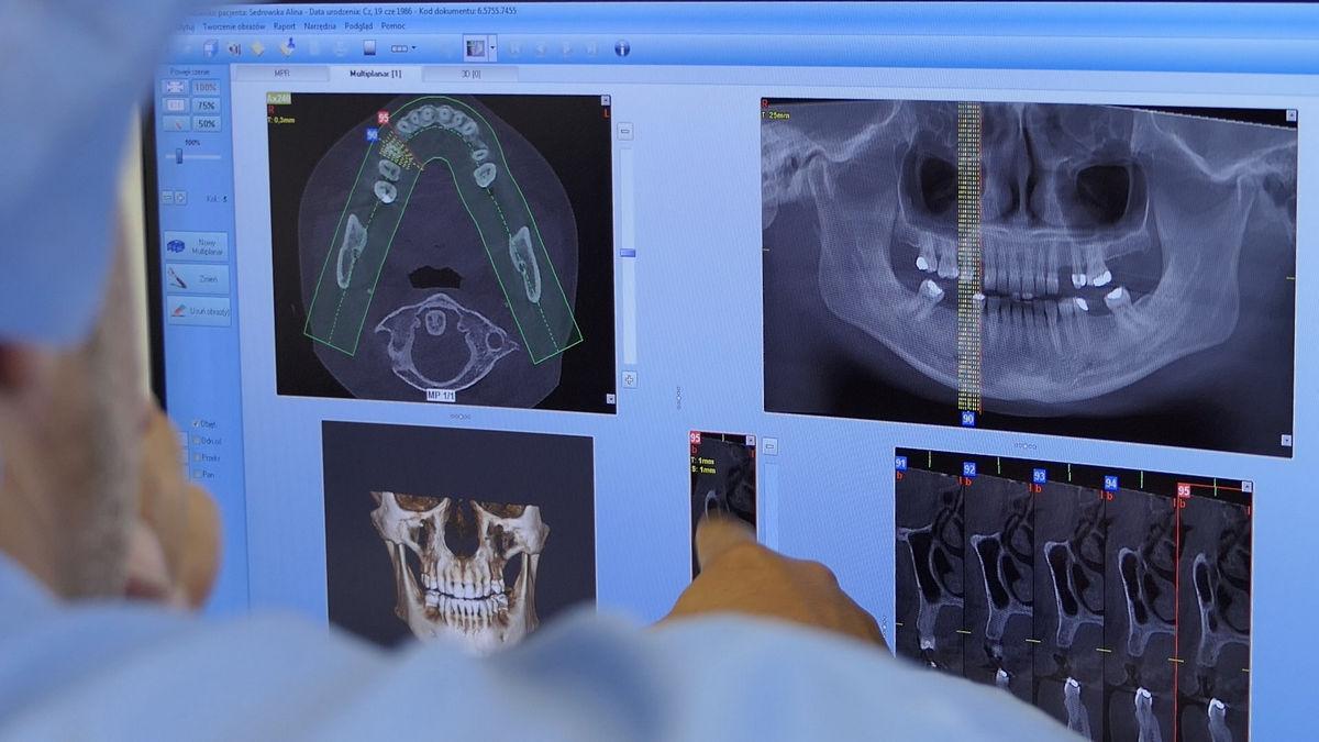 preludium-implantologii-sezon-02-sesja-03-086